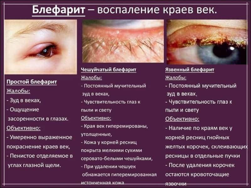 проявление болезни