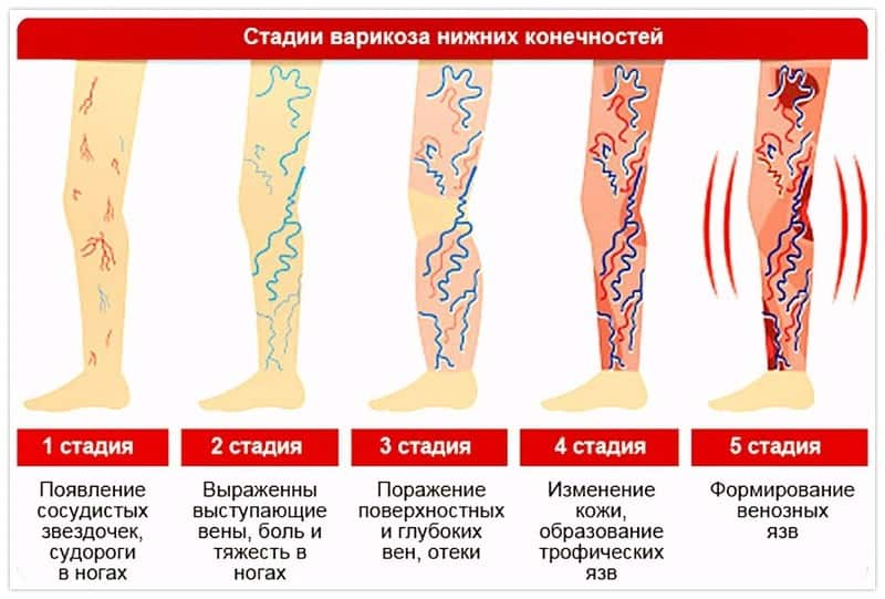 стадии болезни при варикозе
