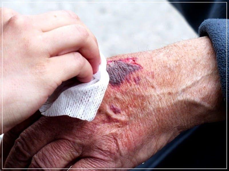 кровавая рана