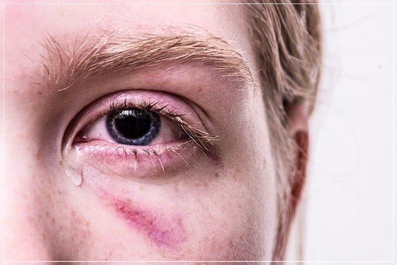 гематома под глазом