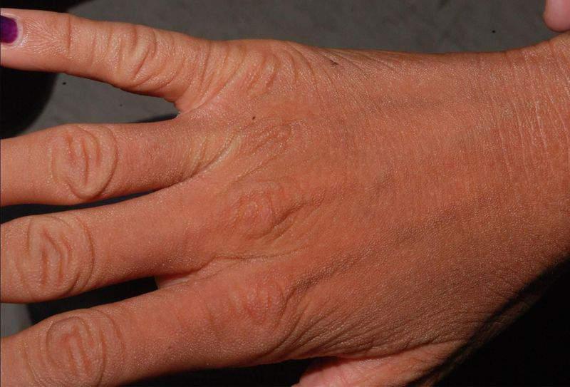 сухая кожа руки
