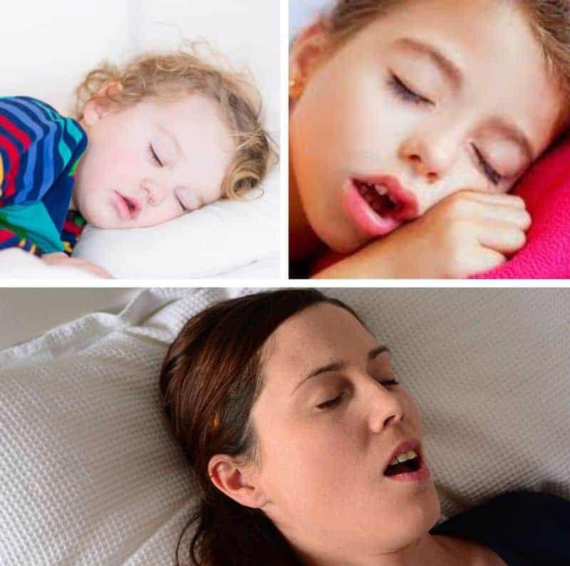 спит с открытым ртом