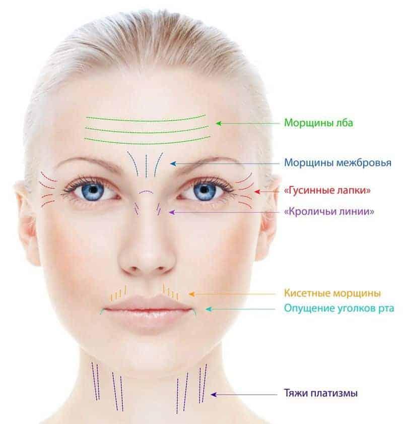 виды морщин на лице
