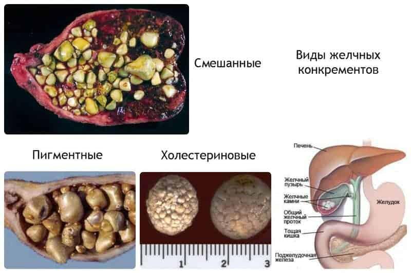 камни в печени