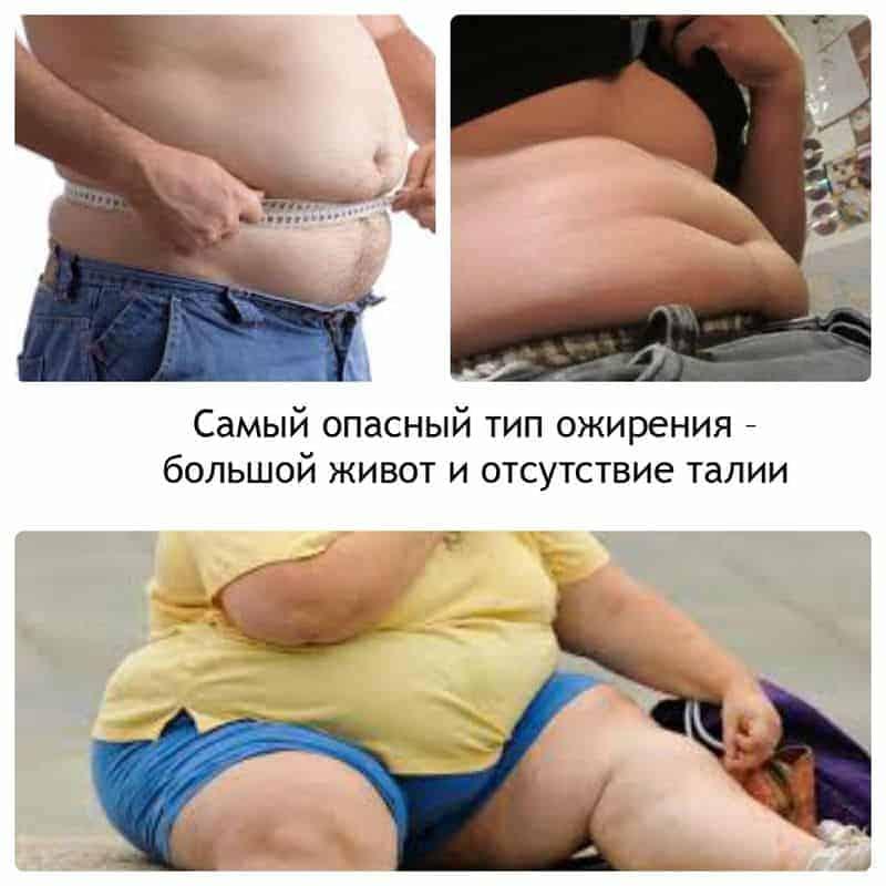 опасность ожирения