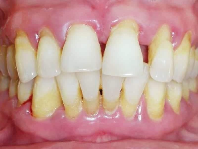 болезни полости рта: пародонтит