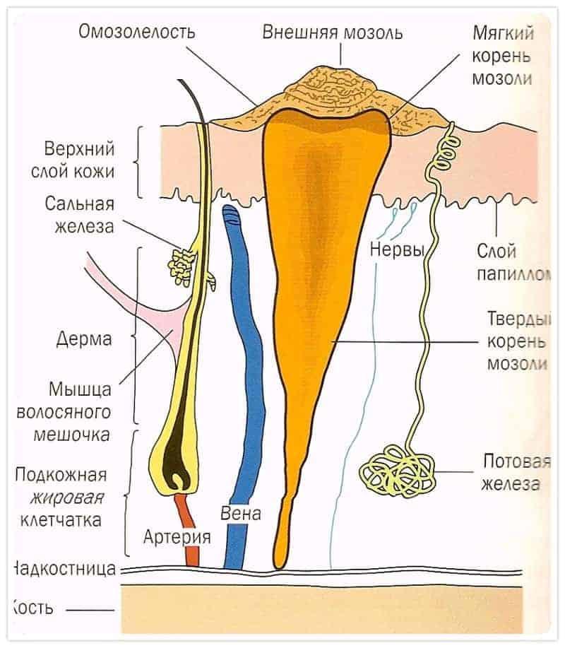 стержневая мозоль
