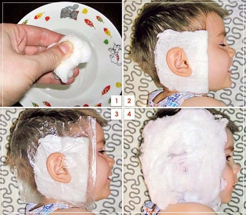 как делать компресс на ухо